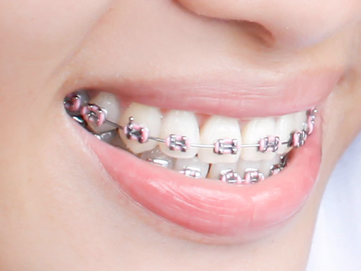 ortodonti-1